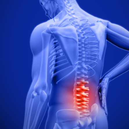 5 Conditions That Cause Chronic Pain