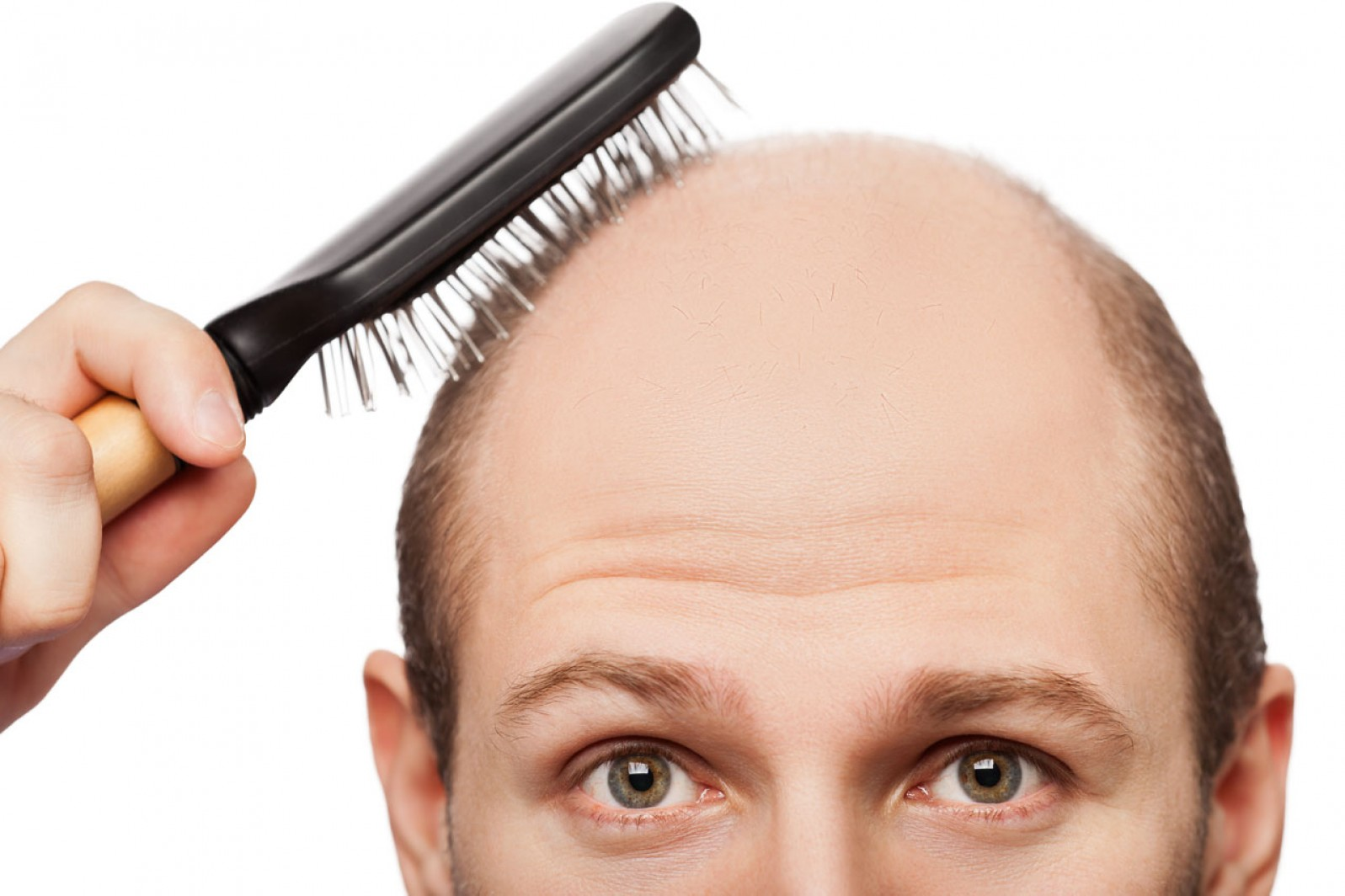 7 Issues That Might Occur After Hair Transplant