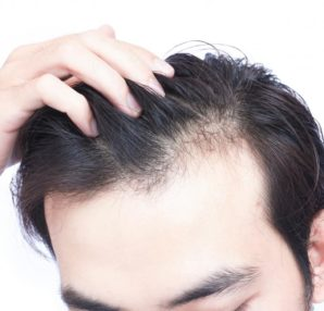 A Comprehensive Look At Hair Loss Solutions