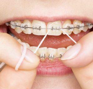 Cutting Down on Sugar Will Lead to Healthier Teeth