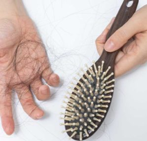 Hair Loss Reasons You Should Know About