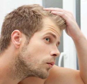 Postpartum Hair Loss Treatment in Delhi-dermalife Clinic