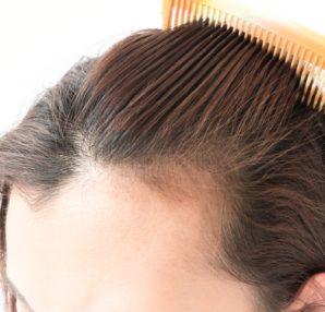Teenage Hair Loss is An Epidemic?